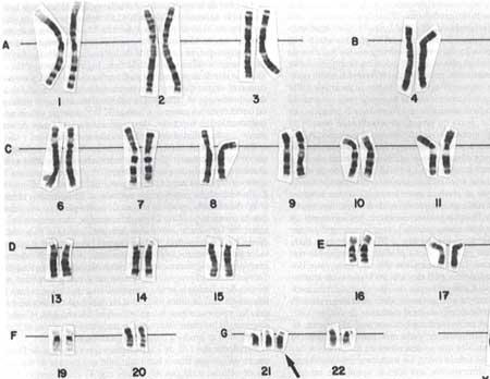 Trisomias